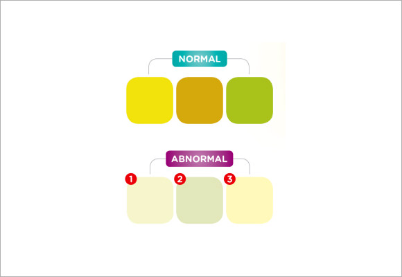 Sample Stool Color Chart   Example Format