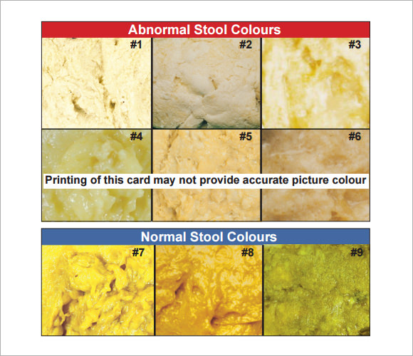 Stool Color Chart Poop Learn What The Color And The Smell Of