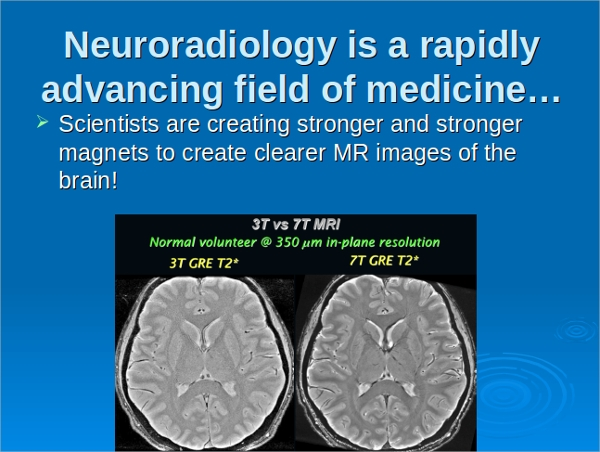 10 brain powerpoint templates sample templates medical brain powerpoint templates toneelgroepblik Images